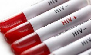 Πως μεταδίδεται ο ιός HIV (AIDS)