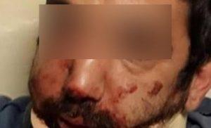 """Τρία χρόνια φυλακή στον """"νταή"""" εργοδότη που χτύπησε τον ντελιβερά στη Θεσσαλονίκη!"""