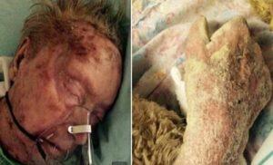 Την έφαγαν τα σκουλήκια και η ψώρα! Πρώην μοντέλο πέθανε παρατημένη και μόνη σε γηροκομείο (ΣΚΛΗΡΕΣ ΦΩΤΟ, ΒΙΝΤΕΟ)